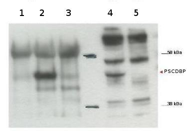 Western blot - Anti-PSCDBP antibody (ab106002)