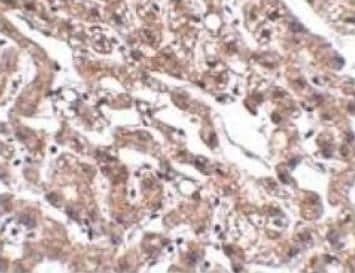 Immunohistochemistry (Formalin/PFA-fixed paraffin-embedded sections) - Anti-MACC1 antibody (ab106005)
