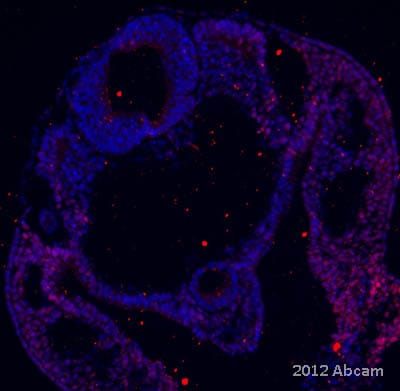 Immunohistochemistry (Frozen sections) - Anti-SLUG antibody (ab106077)