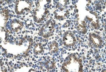 Immunohistochemistry (Formalin/PFA-fixed paraffin-embedded sections) - SLC37A3 antibody (ab106335)