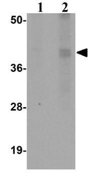 Western blot - CALHM1 antibody (ab106561)