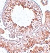 Immunohistochemistry (Formalin/PFA-fixed paraffin-embedded sections) - ESX1 antibody (ab106614)
