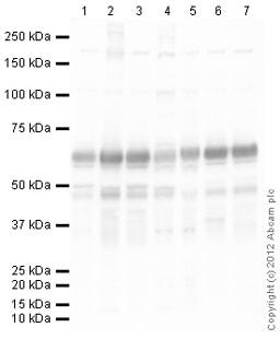 Western blot - Anti-Synaptotagmin 1 antibody (ab106621)