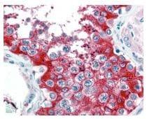 Immunohistochemistry (Formalin/PFA-fixed paraffin-embedded sections) - Anti-Glucose 6 Phosphate Dehydrogenase antibody (ab106810)