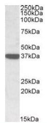 Western blot - Acidic Calponin antibody (ab106946)
