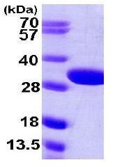 SDS-PAGE - glsA1 protein (His tag) (ab107143)