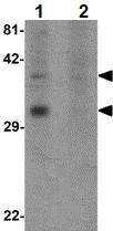 Western blot - OGFOD2 antibody (ab107588)