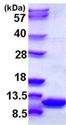 SDS-PAGE - S100 alpha 6 protein (His tag) (ab108124)