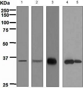 Western blot - APRIL antibody [EPR4286] (ab108206)