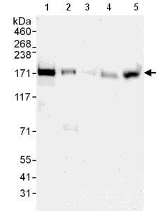 Western blot - ANKRD50 antibody (ab108219)