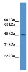 Western blot - KLHDC3 antibody (ab108262)