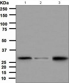 Western blot - Anti-CITED2 antibody [EPR3416(2)] (ab108345)