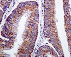 Immunohistochemistry (Formalin/PFA-fixed paraffin-embedded sections) - ARF1 antibody [EPR443] (ab108347)