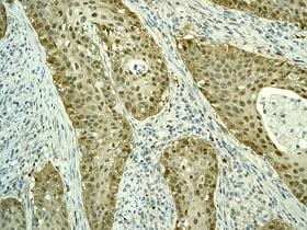 Immunohistochemistry (Formalin/PFA-fixed paraffin-embedded sections) - Anti-CDKN2A/p16INK4a  antibody [EPR1473] (ab108349)