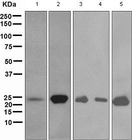 Western blot - Myosin light chain 3 antibody [EPR4161] (ab108516)