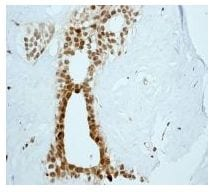 Immunohistochemistry (Formalin/PFA-fixed paraffin-embedded sections) - MAD3 antibody [EPR3882] (ab108525)