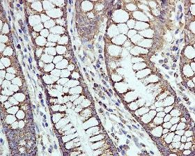 Immunohistochemistry (Formalin/PFA-fixed paraffin-embedded sections) - Cpn10 antibody [EPR4476] (ab108600)