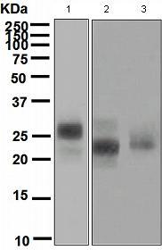 Western blot - CD3G antibody [EPR4516] (ab108996)