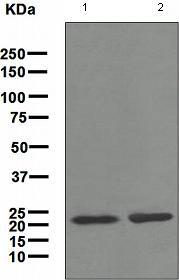 Western blot - Tetranectin antibody [EPR3067] (ab108999)