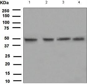 Western blot - Pygopus 2 antibody [EPR2024(2)] (ab109001)