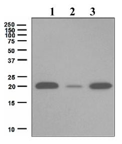 Western blot - Ferritin Light Chain antibody [EPR5259] (ab109019)