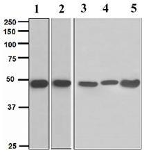Western blot - MAGE 1 antibody [EPR4276] (ab109108)