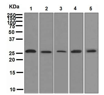 Western blot - Neurogenin 2 antibody [EPR4178] (ab109172)