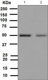 Western blot - Anti-Vitamin D Receptor  antibody [EPR4552] (ab109234)