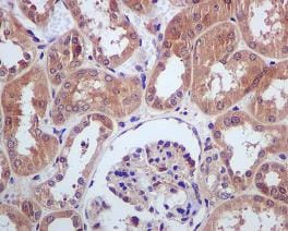 Immunohistochemistry (Formalin/PFA-fixed paraffin-embedded sections) - PLCG 2  antibody [EPR1403] (ab109267)