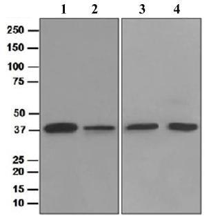 Western blot - TIMM50 antibody [EPR5785] (ab109436)