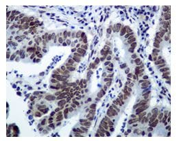 Immunohistochemistry (Formalin/PFA-fixed paraffin-embedded sections) - STAT1 (phospho S727) antibody [EPR3146] (ab109461)