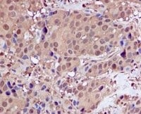 Immunohistochemistry (Formalin/PFA-fixed paraffin-embedded sections) - Proteasome 20S C2 antibody [EPR5452] (ab109530)