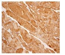Immunohistochemistry (Formalin/PFA-fixed paraffin-embedded sections) - Acetyl Coenzyme A Carboxylase (phospho S221) antibody [EPR3143Y] (ab109540)