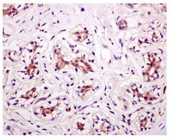 Immunohistochemistry (Formalin/PFA-fixed paraffin-embedded sections) - GRB7 antibody [EPR4378] (ab109618)