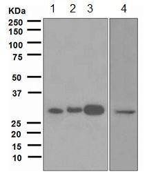 Western blot - Anti-Dlx5 antibody [EPR4488] (ab109737)