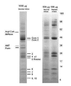 Immunoprecipitation - Complex III Immunocapture Kit (ab109800)