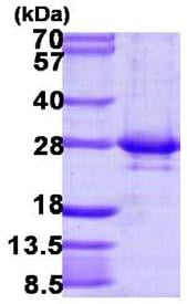 SDS-PAGE - RAB14 protein (His tag) (ab109832)