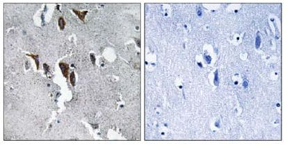 Immunohistochemistry (Formalin/PFA-fixed paraffin-embedded sections) - ELOVL5 antibody (ab109983)