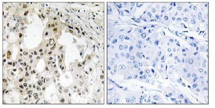 Immunohistochemistry (Formalin/PFA-fixed paraffin-embedded sections) - EIF3D antibody (ab109990)