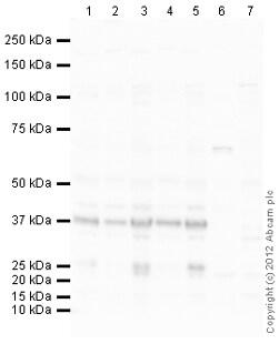 Western blot - Anti-NMNAT2 antibody (ab110040)