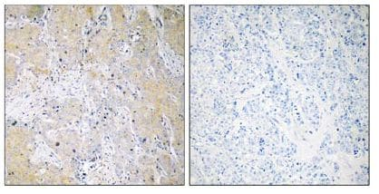 Immunohistochemistry (Formalin/PFA-fixed paraffin-embedded sections) - Anti-Proteasome 26S S3 antibody (ab110067)