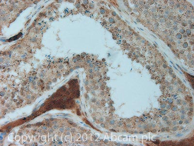 Immunohistochemistry (Formalin/PFA-fixed paraffin-embedded sections) - Anti-Smac / Diablo antibody [8H5AA3] (ab110288)
