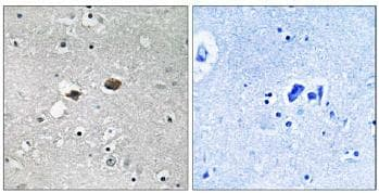 Immunohistochemistry (Formalin/PFA-fixed paraffin-embedded sections) - TIGD3 antibody (ab110480)
