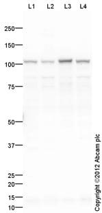 Western blot - Anti-Hexokinase 1 antibody (ab110529)