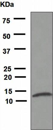 Western blot - Anti-IL8 antibody [EPR1116(2)] (ab110727)