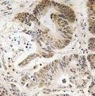 Immunohistochemistry (Formalin/PFA-fixed paraffin-embedded sections) - PIK3R5 antibody (ab111152)
