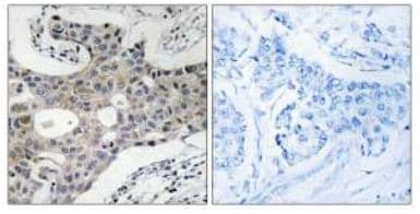 Immunohistochemistry (Formalin/PFA-fixed paraffin-embedded sections) - SEC16A antibody (ab111155)