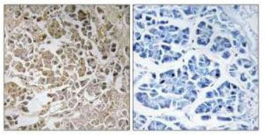 Immunohistochemistry (Formalin/PFA-fixed paraffin-embedded sections) - PEX11C antibody (ab111156)