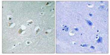Immunohistochemistry (Formalin/PFA-fixed paraffin-embedded sections) - MAP3K9 +MAP3K10 (phospho T312 + T266) antibody (ab111389)