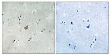 Immunohistochemistry (Formalin/PFA-fixed paraffin-embedded sections) - EPH A3+A4+A5 (phospho Y779) antibody (ab111407)